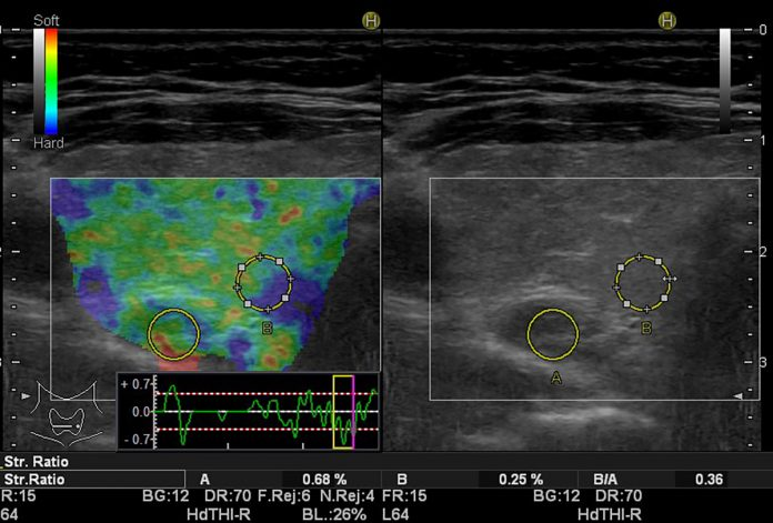 Real Time Elastography